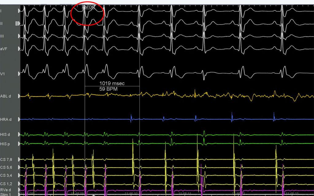 Κατάλυση Προσθιοδιαφραγματικού Δεματίου - Απόστολος Κατσίβας - Καρδιολόγος
