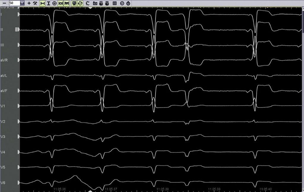 Κατάλυση Ασθενής - δεξιοκαρδία - ολική αναστροφή σπλάχνων - Απόστολος Κατσίβας - Καρδιολόγος Αθήνα
