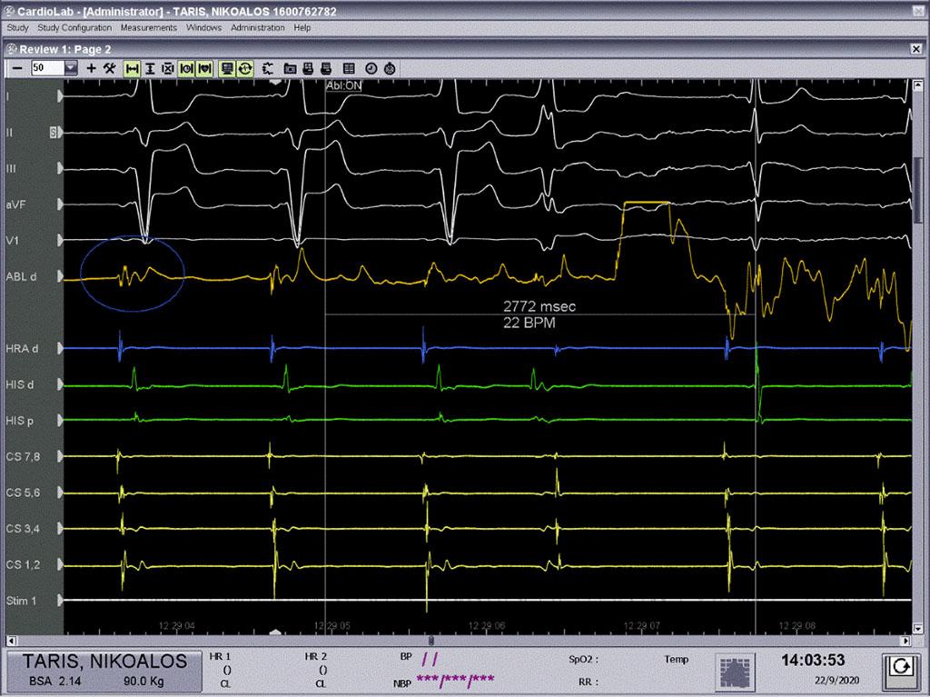 Κατάλυση Ασθενής - δεξιοκαρδία - ολική αναστροφή σπλάχνων - Απόστολος Κατσίβας - Καρδιολόγος Αθήνα - 7