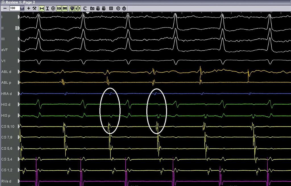 Αλλαγή του μήκους κύκλου της ταχυκαρδίας και πρωιμότερη κολπική εκπόλωση στον άνω κόλπο - Απόστολος Κατσίβας - Καρδιολόγος Αθήνα