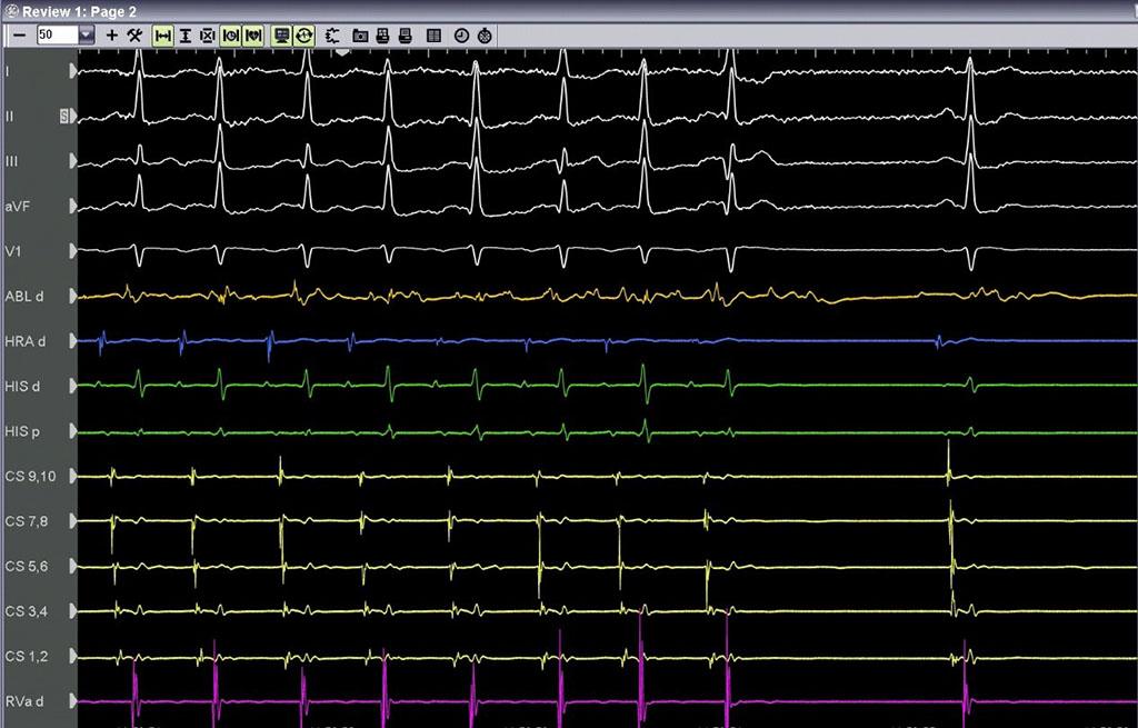 Θέση επιτυχής κατάλυσης - Απόστολος Κατσίβας - Καρδιολόγος Αθήνα
