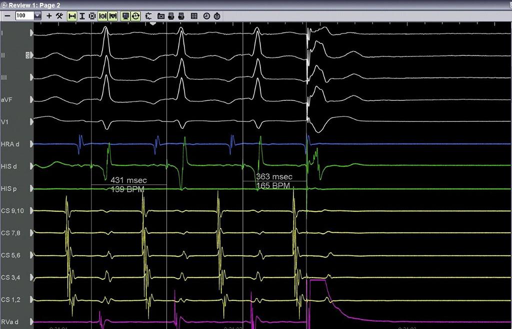 Χορήγηση έκτακτου κοιλιακού ερεθίσματος - κορυφή της δεξιάς κοιλίας - Απόστολος Κατσίβας - Καρδιολόγος Αθήνα